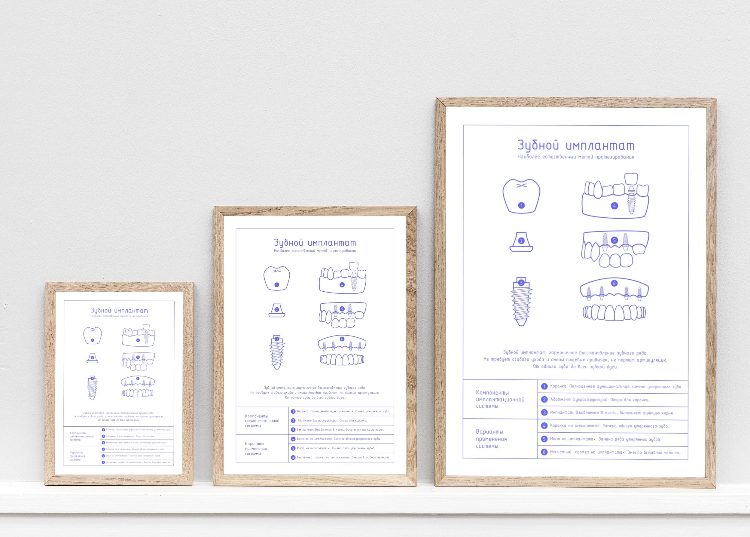Плакат Зубной имплантат лайт в трех размерах